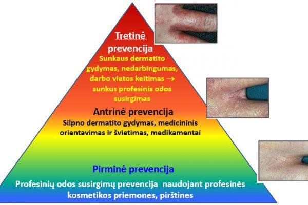 Odos ligų prevencija